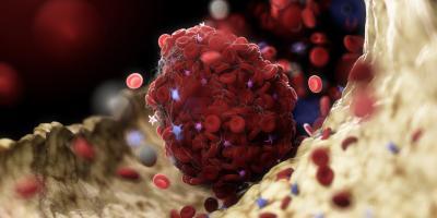 L'interaction des neutrophiles et des plaquettes sanguines mène à un phénomène d'immunothrombose qui précède la détresse pulmonaire (Adobe Stock 315109779)