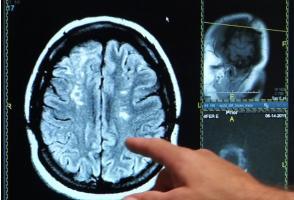 L'insomnie est bien un effet secondaire probable à long terme de l'AVC.