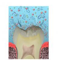 Un nouveau composite, ou un nouveau dentifrice préventif illustreront bientôt cette alternative aux soins actuels : la reminéralisation guidée par les peptides.