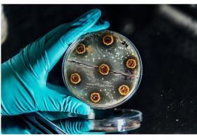 Ces avancées, présentées dans la revue Nature Communications, devraient permettre non seulement d'ouvrir les bonnes pistes pour les antimicrobiens du futur mais aussi à terme, sur un plan clinique, aider les médecins à « mieux prescrire ».