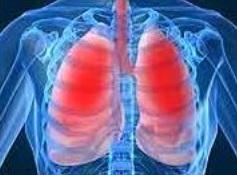 La Broncho Pneumopathie Chronique Obstructive (BPCO) touche une femme âgée sur 7 qui n'a jamais fumé mais qui est obèse morbide