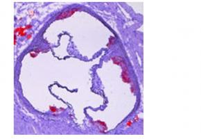 La maladie est caractérisée par un rétrécissement des parois artérielles résultant de l'accumulation (athérome) de lipides et de cellules, appelée plaque d'athérome.