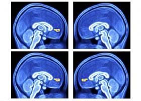 l'équipe mesure la réponse d'enfants autistes à différents signaux environnementaux sous imagerie par résonance magnétique fonctionnelle (IRMf).