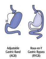 Ces 2 types de chirurgie peuvent changer radicalement la sensibilité et l'absorption d'alcool