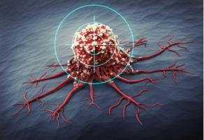 L'angiogenèse ou la formation de nouveaux vaisseaux sanguins, est essentielle à la croissance tumorale.