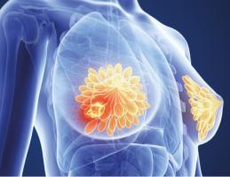 a consommation élevée de fruits et légumes, soit plus de 5 portions par jour, pourrait réduire le risque de cancer du sein de 11%