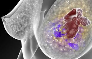 Chez les jeunes femmes, la radiothérapie du sein gauche double le risque de maladie cardiaque par rapport à la radiothérapie du sein droit (Visuel Fotolia)