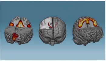 Ces scientifiques ont mis au point une technique d'entraînement cérébral capable d'induire des modifications des réseaux de neurones… en moins d'une heure.