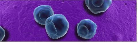 L'infection à chlamydia est l'infection bactérienne transmise sexuellement la plus répandue dans le monde.