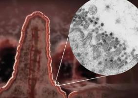 On sait aujourd'hui que le coronavirus SARS-CoV-2 est retrouvé dans les selles de certains patients in ce qui suggère qu'il infecte les cellules de l'intestin.