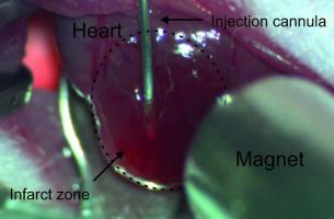 ? Cette méthode innovante consiste à charger les cellules musculaires injectées de nanoparticules magnétiques, à les maintenir en place par un aimant, ce qui permet une meilleure prise de greffe sur le tissu existant.