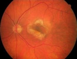 Alors que la formation excessive de vaisseaux sanguins (angiogenèse) dans l'œil est impliquée dans la dégénérescence maculaire liée à l'âge, la rétinopathie diabétique proliférante, le glaucome néovasculaire et la rétinopathie des prématurés, des causes majeures de cécité, les isoflavonoïdes d'origine naturelle -ici extraits de plantes la famille des Hyacinthaceae, confirment ici une capacité antiproliférative puissante dans les cellules endothéliales et un fort potentiel anti-angiogénique in vitro et in vi