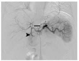 L'embolisation gastrique ou bariatrique, une procédure moins invasive, qui consiste à injecter des billes microscopiques sous contrôle d'imagerie dans l'artère alimentant l'estomac en sang.