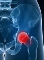 Un traitement prophylactique permet de réduire de 65% le risque de fracture chez les patients âgés sous cortisone