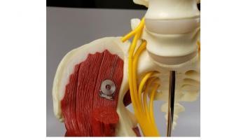 L'implant biodégradable fournit une stimulation électrique pour accélérer la régénération et améliorer la guérison d'un nerf endommagé.