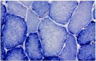 De premiers résultats d'efficacité prometteurs du tamoxifène apportent l'espoir d'un premier traitement contre la myopathie myotubulaire