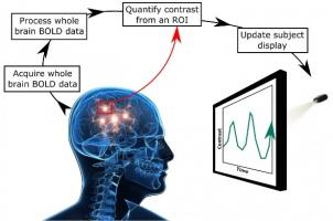 Le neurofeedback est en effet capable de réduire la sévérité des acouphènes ou même de les éliminer chez certains patients.