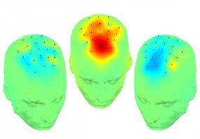 Ces enregistrements cérébraux peropératoires qui identifient une nouvelle connexion cérébrale révèlent aussi une cible prometteuse pour l'amélioration des symptômes cognitifs