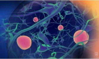 On ignorait jusque-là le développement de forme d'inflammation du cerveau chez les patients à risque de développer la maladie de Parkinson