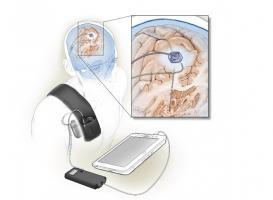 C'est le premier système implanté auto-adaptatif, qui utilise la rétroaction du cerveau lui-même pour affiner sa signalisation.
