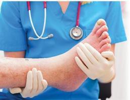 La « maladie du pied diabétique » est l'une des principales causes d'invalidité dans le monde, avec un taux de mortalité supérieur à celui de nombreux cancers.