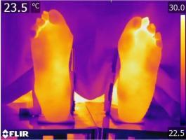 Image thermique montrant les températures dans les différentes régions du pied (Visuel Staffordshire University)