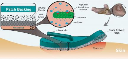 Ce pansement « gazeux » est appliqué sur la plaie, puis connecté à un petit appareil générateur d'ozone alimenté par batterie. L'ozone gazeux est diffusé de manière hyper-ciblée à la surface de la peau sur le site de la plaie (Visuel Université Purdue / Rahim Rahimi)