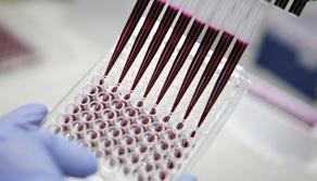 Le dispositif collecte en continu des cellules cancéreuses vivantes directement à partir du sang du patient.