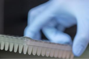 Ce test sanguin peut prédire la résistance tumorale prostatique face aux principaux anticancéreux