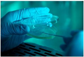 Les communautés microbiennes associées à ces plaies chroniques courantes chez les patients diabétiques ont une incidence sur le fait que ces plaies cicatrisent ou conduisent à l'amputation