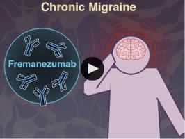 Cette thérapie par anticorps contre une molécule inflammatoire clé, impliquée dans les migraines, réduit en effet la fréquence des crises.