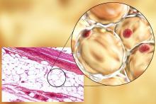 « Ces exosomes AdExos en « faisant grossir » les cellules immunitaires semblent réguler la réponse immunitaire ».
