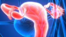 Les promesses de l'alphathérapie contre le cancer de l'ovaire (Visuel Adobe Stock 120411822)