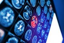 Les sarcomères, les éléments constitutifs les plus petits du muscle disparaissent aussi, après un AVC (Visuel Adobe Stock 220113313)