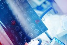 Ce programme est capable de détecter des biomarqueurs de neurodégénérescence bien avant l'apparition des premiers symptômes (Visuel Adobe Stock 228893665)
