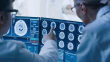 Ce n'est pas la première étude à suggérer que la maladie de Parkinson commence dans l'intestin ou le microbiote intestinal, et à invoquer le fameux axe intestin-cerveau  (Visuel Adobe Stock 236237463)