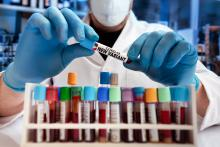 En dépit d'une forte réduction de la circulation du virus SARS-CoV-2 et de l'incidence de COVID-19, l'émergence et la transmission plus élevée des nouveaux variants sont sources de préoccupation (Visuel Adobe Stock 423691758)