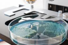 En identifiant le mécanisme moléculaire sous-jacent à ce sens du toucher des bactéries, il serait possible de trouver le moyen de les priver, au moins en partie, de leur capacité de propagation (Adobe Stock 85264602)