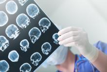L'épilepsie est un trouble neurologique caractérisé par une activité cérébrale anormale qui peut provoquer des crises, et qui touche environ 1% de la population.