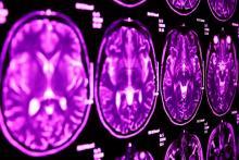 Une altération génétique explique une grande partie des symptômes communs entre l'autisme et le syndrome de la Tourette