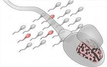 Pouvoir détecter certaines mutations dans le sperme du père pourrait permettre de révéler un risque d'autisme chez ses futurs enfants