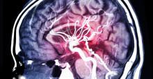 Ce nouveau médicament neuroprotecteur, le nérinetide, pourrait être très utile en combinaison avec la thérapie endovasculaire de reperfusion après un AVC ischémique.