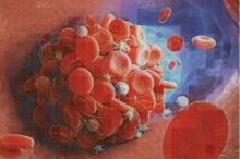Différents types de caillots sanguins sont causés par différentes molécules, et les caillots ne se ressemblent pas tous (Visuel Yuqi Zhou (CC BY 4.0))
