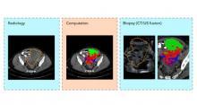 Cette technique d'échantillonnage de précision à base d'imagerie de base évite aux patients trop de procédures invasives et marque une étape importante dans une prise en charge mieux personnalisée et moins stressante des patients (Visuel Evis Sala/University of Cambridge)