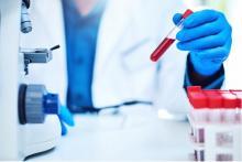 Ce test non ou peu invasif constitue une avancée considérable dans le diagnostic des gliomes (Visuel Fotolia)
