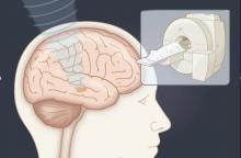 L'équipe de l'UVA Health utilise ces ultrasons focalisés chez les patients présentant des symptômes de la maladie de Parkinson beaucoup plus graves d'un côté du corps (Visuel UVA Health)