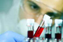 Un nouveau type de biopsie liquide avec un nouveau biomarqueur, les monocytes, pourrait via un simple test sanguin détecter le cancer du sein (Visuel AdobeStock_230517428)