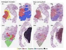 C'est une première démonstration de la performance élevée de l'apprentissage automatique dans le cadre d'une tâche de classification d'images complexes et des applications possibles dans le diagnostic des cancers, mais pas seulement.