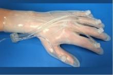 Ce gant cicatrisant répond en effet à un véritable besoin, à la fois sur les zones de combat mais aussi en santé communautaire : il permet d'accélérer la cicatrisation des plaies complexes de la main.