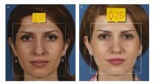 L'IA permet d'évaluer de manière objective les résultats d'une chirurgie plastique.